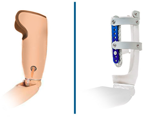 Przedefiniowane Powyżej Gniazd Łokciowych .Martin Bionics.